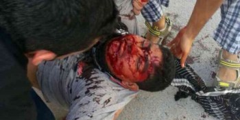 Uprising anniversary – Bahrain Police unleash murderous scourge against Protesters